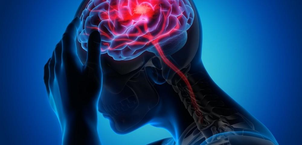 Πονοκέφαλος και φυσικοί τρόποι αντιμετώπισης